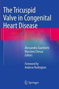 The Tricuspid Valve in Congenital Heart Disease