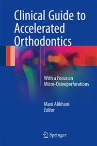 Clinical Guide to Accelerated Orthodontics + Ereference