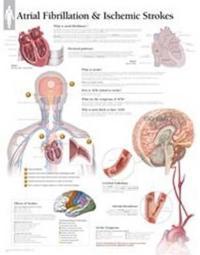 Atrial Fib & Ischemic Strokes Chart