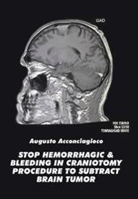 Stop Hemorrhagic & Bleeding in Craniotomy Procedure to Substract Brain Tumor