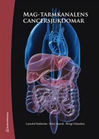 Mag-tarmkanalens cancersjukdomar
