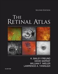 Retinal Atlas E-Book