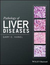 P Pathology of Liver Diseases/P