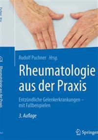 Rheumatologie Aus Der Praxis: Entzundliche Gelenkerkrankungen - Mit Fallbeispielen