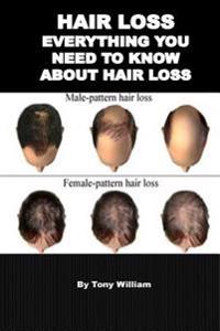 Hair Loss: Everything You Need to Know about Hair Loss