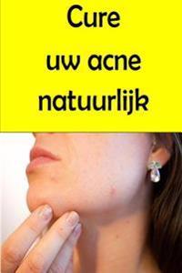 Cure Uw Acne Natuurlijk