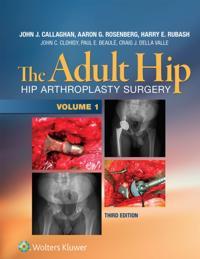Adult Hip