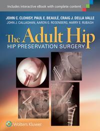Adult Hip: Hip Preservation Surgery