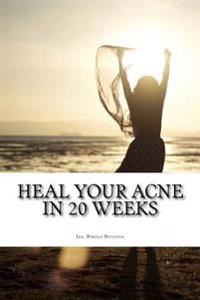 Heal Your Acne in 20 Weeks: Everyday Skin Care Plan