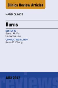 Burns, An Issue of Hand Clinics, E-Book