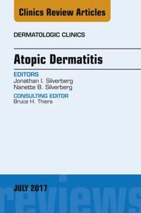 Atopic Dermatitis, An Issue of Dermatologic Clinics, E-Book