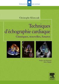 Techniques d'echographie cardiaque