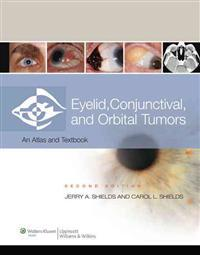 Eyelid, Conjunctival, and Orbital Tumors