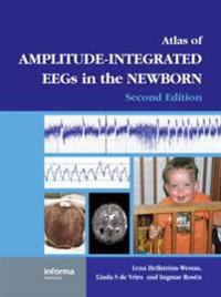An Atlas of Amplitude-Integrated EEGs in the Newborn