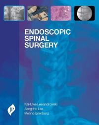 Endoscopic Spinal Surgery