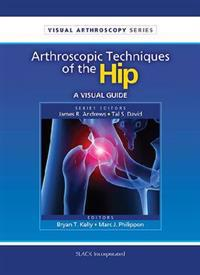 Arthroscopic Techniques of the Hip