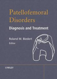 Patellofemoral Disorders: Diagnosis and Treatment