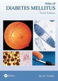 Atlas of Diabetes Mellitus