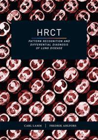 HRCT – Pattern recognition and differential diagnosis of lung disease