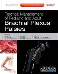 Practical Management of Pediatric and Adult Brachial Plexus Palsies