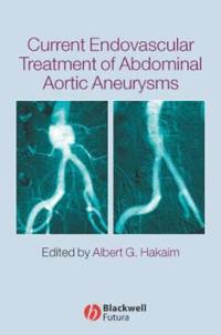 Current Endovascular Treatment of Abdominal Aortic Aneurysms