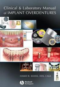 Clinical and Laboratory Manual of Implant Overdentures