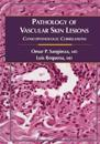 Pathology of Vascular Skin Lesions