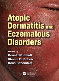 Atopic Dermatitis and Eczematous Disorders