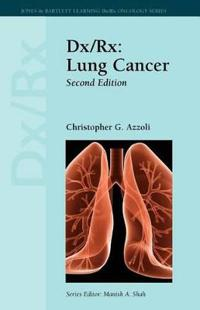Dx/Rx: Lung Cancer