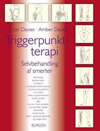 Triggerpunktterapi