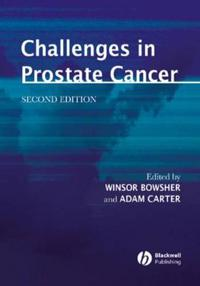Challenges in Prostate Cancer, 2nd Edition