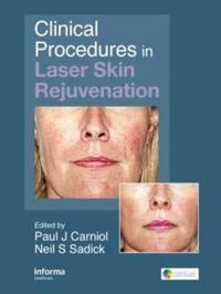 Clinical Procedures in Laser Skin Rejuvention
