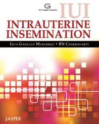 IUI Intrauterine Insemination