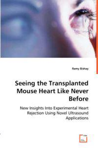 Seeing the Transplanted Mouse Heart Like Never Before