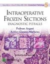 Intraoperative Frozen Sections