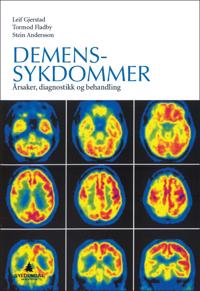 Demenssykdommer
