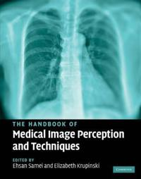 The Handbook of Medical Image Perception and Techniques