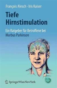 Tiefe Hirnstimulation: Ein Ratgeber Für Betroffene Bei Morbus Parkinson