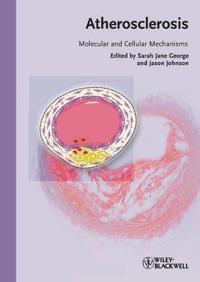Atherosclerosis: Molecular and Cellular Mechanisms