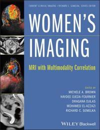 Women's Imaging: MRI with Multimodality Correlation