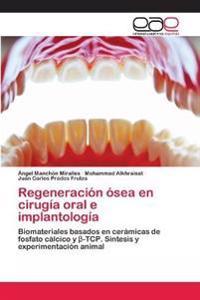 Regeneracion Osea En Cirugia Oral E Implantologia