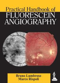 Practical Handbook of Fluorescein Angiography