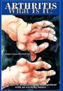 Arthritis What Is It?