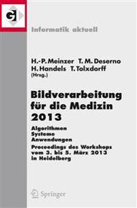 Bildverarbeitung Fur Die Medizin 2013