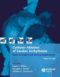 Catheter Ablation of Cardiac Arrhythmias