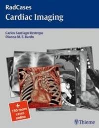 Cardic Imaging
