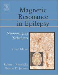 Magnetic Resonance in Epilepsy