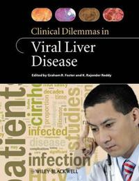 Clinical Dilemmas in Viral Liver Disease