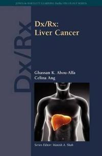 Dx/Rx: Liver Cancer