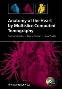 Anatomy of the Heart by Multislice Computed Tomography [With CDROM]